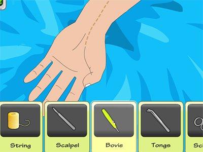 Arm Surgery